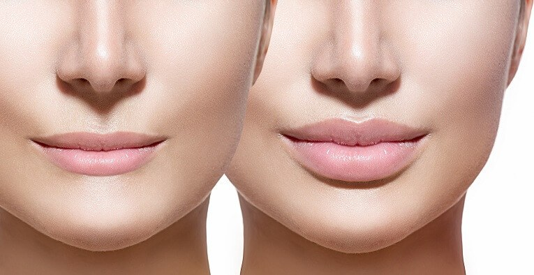 lip-augmentation-topforma